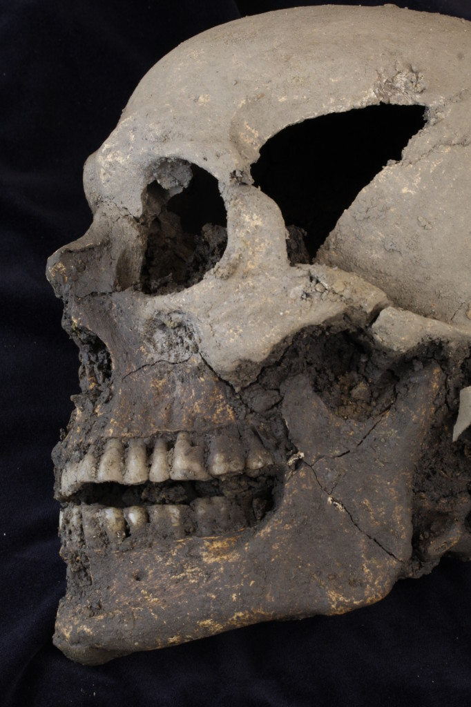 The skull of one of the individuals excavated at College Green (Copyright Rubicon Heritage Services Ltd)